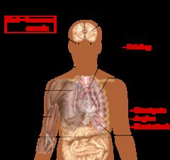 240px-Symptoms_of_anemia